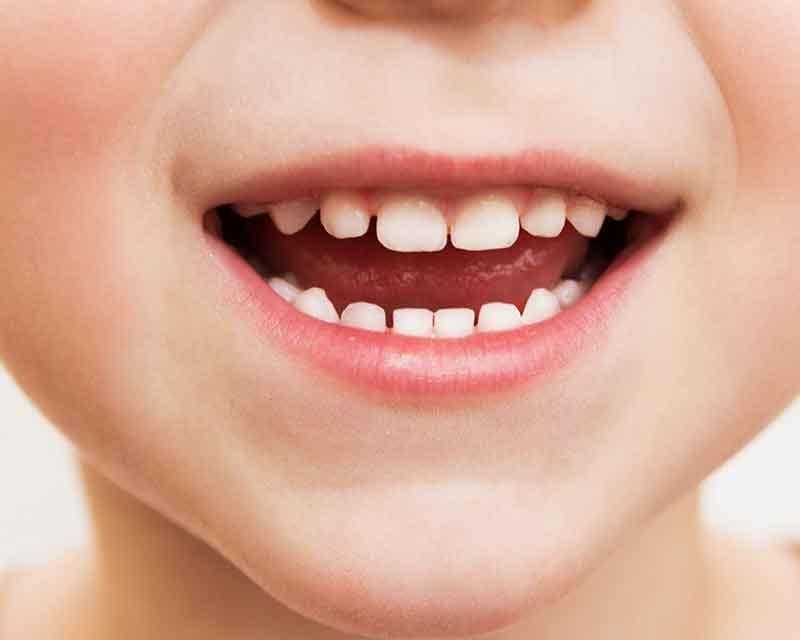 sigillatura-denti-bambini
