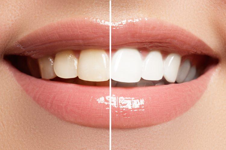 Come sbiancare i denti, tecniche e tecnologie